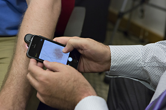 la-fi-tn-iphone-app-diagnose-skin-cancer-20140508